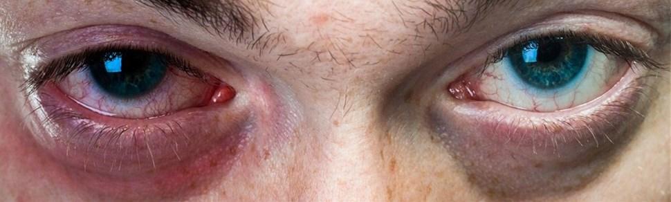 ooglid irritatie