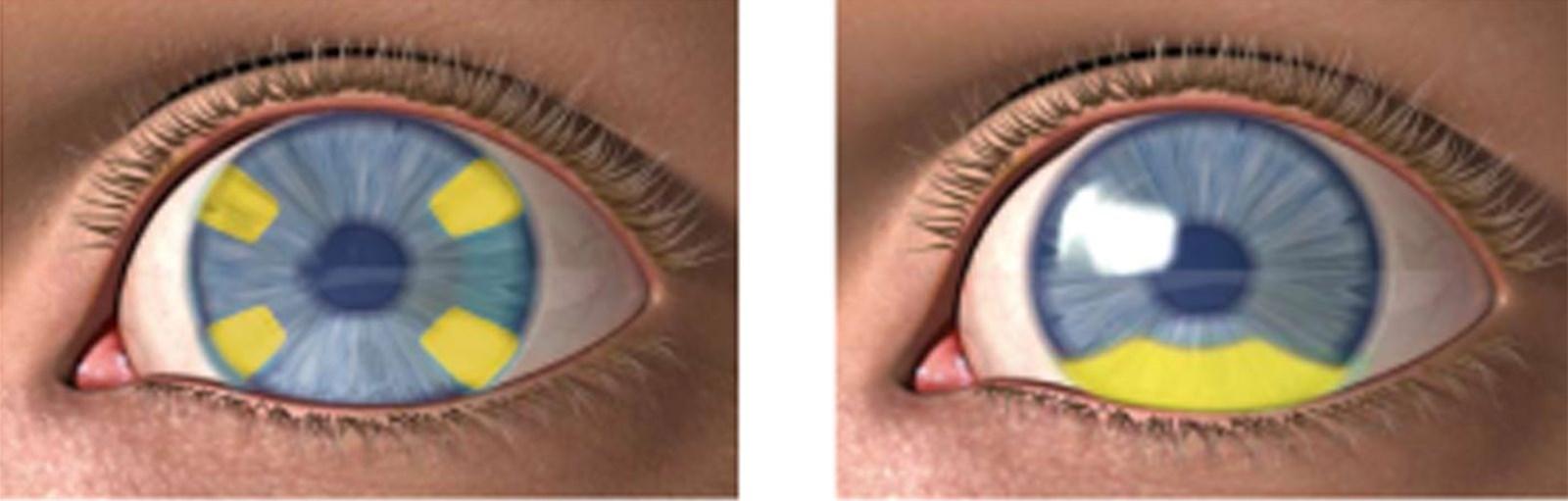 lentilles avec une correction cilindrique pour astigmatisme. Black Bedroom Furniture Sets. Home Design Ideas